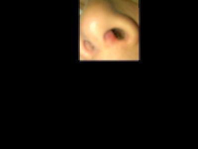 Nổi cục cứng đỏ (hoặc là viêm) ở trong lỗ mũi vùng trụ mũi
