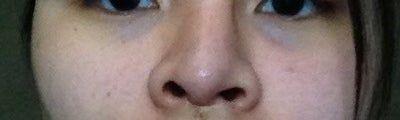 Có phải tôi bị hoại tử do tăng áp lực lên mô mũi không?