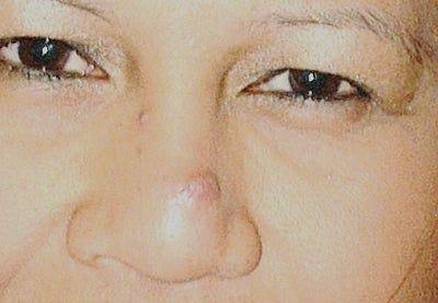 Xuất hiện mụn mủ màu vàng có phải là dấu hiệu áp xe mũi và nhiễm trùng?