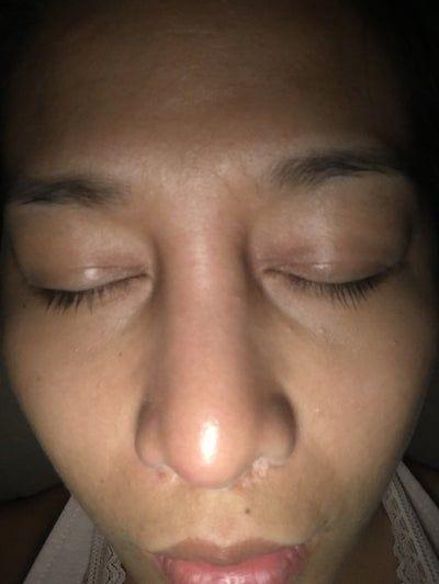 Mũi đột nhiên sưng và giống tụ dịch sau 4 tuần?