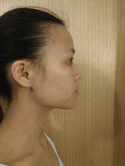 Nâng mũi bằng silicone siêu mềm thì có nguy cơ lòi sụn hay biến chứng trong tương lai không?