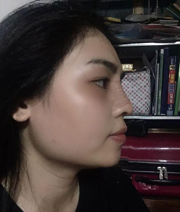 Nâng mũi 7 ngày, đầu mũi hơi dài khoằm sợ sau này bị tụt thêm