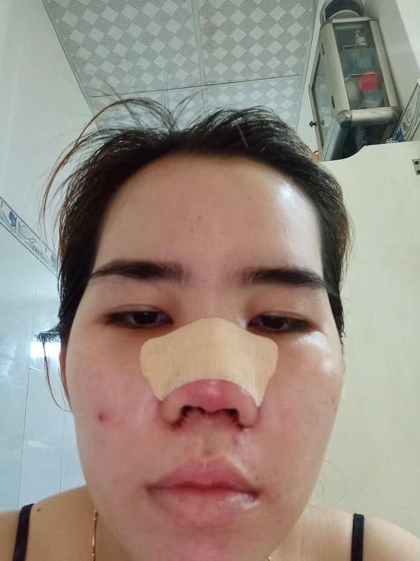 Nâng mũi 3 ngày mà đầu mũi đỏ vậy có sao không?