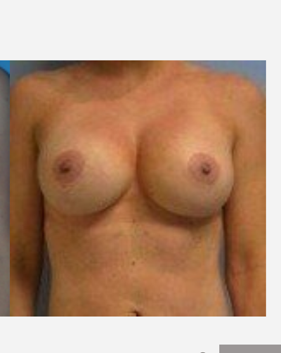 Tôi muốn treo sa trễ và đặt túi độn thì có nên lựa chọn đường mổ sẹo quanh quầng vú không?