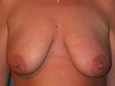 Có cách nào tránh được vết sẹo dọc giữa vú khi treo ngực sa trễ không?