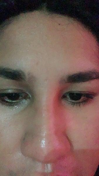 Mũi đột ngột bị sưng lại sau 3 tuần phẫu thuật, có bình thường không?