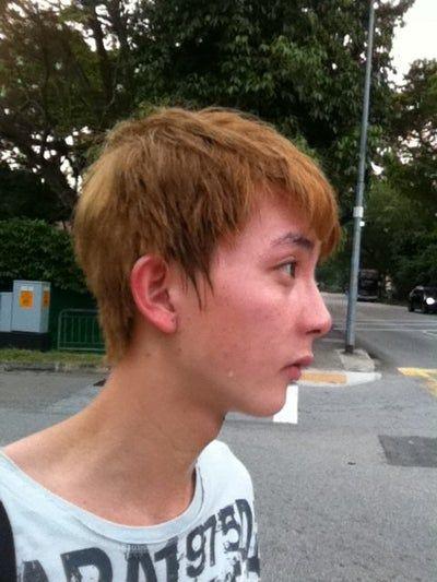 Tôi có cần nâng sống mũi và kéo dài đầu mũi để gương mặt trông nam tính hơn không?