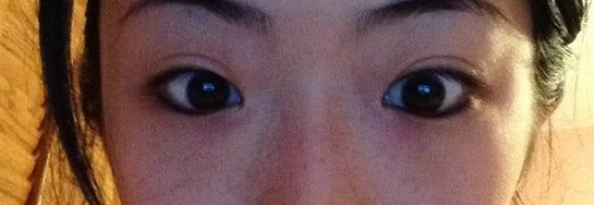 Nâng mũi có giúp mắt to hơn không?