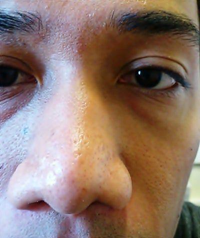 Chỉ phẫu thuật thu gọn cánh mũi thôi có phù hợp với tôi không?