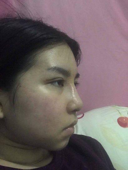 3 tuần sau nâng mũi: gốc mũi quá cao, liệu nó có thấp xuống theo thời gian không?