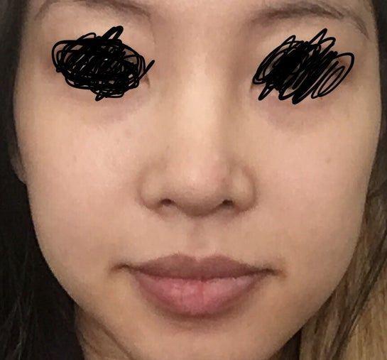 Sau khi rút sụn ra, mũi tôi bị lệch: tiêm filler để mũi thẳng lại có được không?
