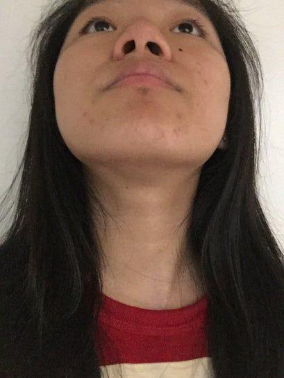 Đầu mũi lệch, bất đối xứng, có phải do ngủ nghiêng nhiều không? Phải khắc phục như nào?