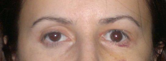 Mắt quá to, trợn sau 5 ngày phẫu thuật sụp mí