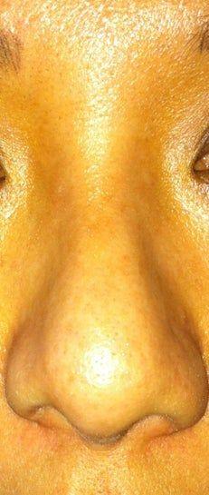 Bị sưng nặng sau 3,5 tháng làm mũi: tiêm steroid có giúp giảm sưng không?