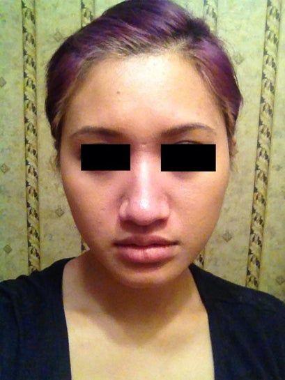 Nâng mũi kết hợp độn cằm có giúp khuôn mặt tôi hài hòa hơn không?