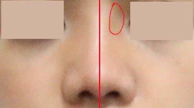 Goretex bị lệch, dịch chuyển sau 2 tháng nâng mũi?