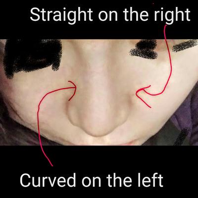 Sụn nâng mũi có thể dịch chuyển không?