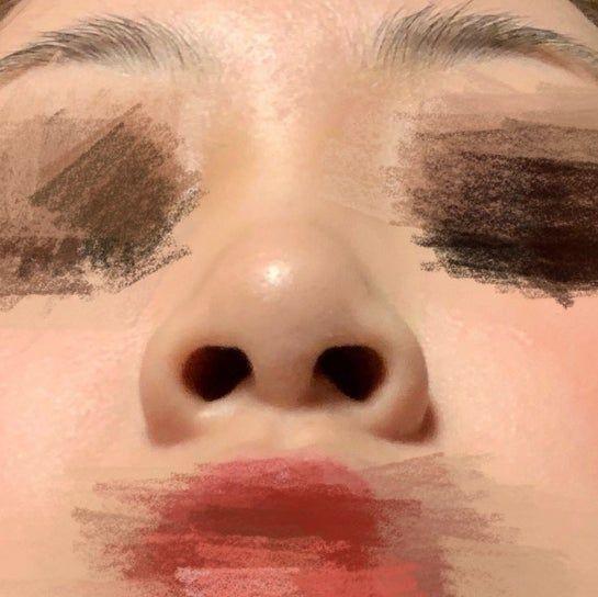 Nên dùng sụn tai hay sụn sườn để nâng mũi?