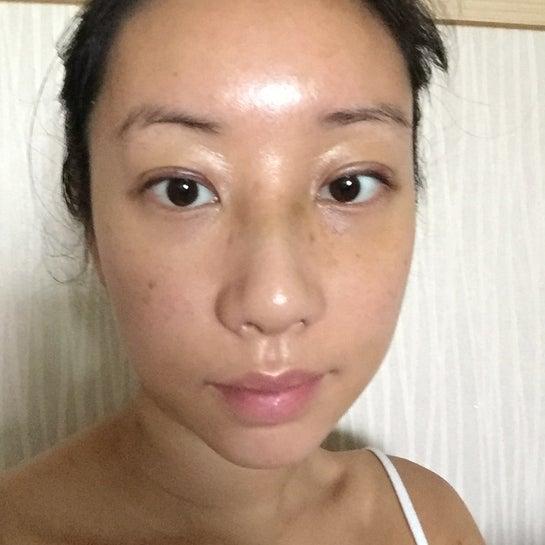 Muốn loại bỏ miếng ghép nâng mũi sau vài tháng, nhưng không biết mũi sẽ thế nào vì trước đó đã đục xương và tạo hình đầu mũi?