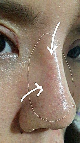 Vỡ mao mạch mũi 3 tuần sau nâng mũi: liệu có tự hết không?