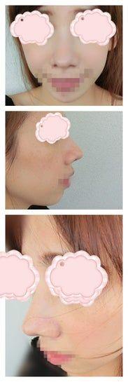 Rút sụn vách ngăn sau 7 tháng nâng mũi có được không?