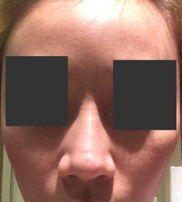 Tạo khấc đầu mũi sau phẫu thuật nâng mũi: nguyên nhân vì sao?