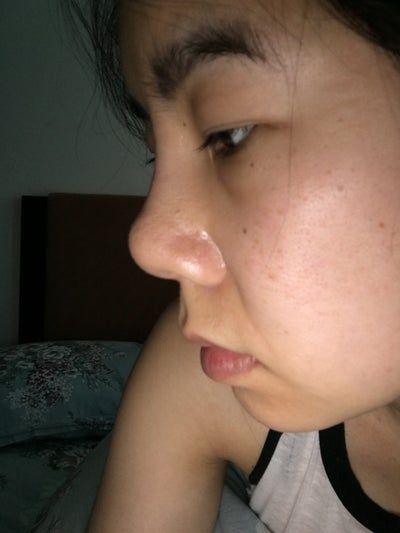 Sau nâng mũi: mũi càng ngày càng bị dịch chuyển, hếch lên phía trên