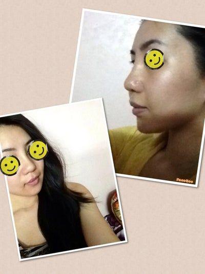 10 ngày sau phẫu thuật: liệu đầu mũi có thon gọn hơn được nữa không?