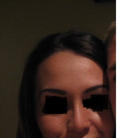 Lộ sụn nâng mũi qua da, có bình thường không?