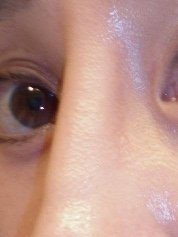Bao lâu sau nâng mũi thì silicone sẽ làm mỏng da, gây lộ sóng?