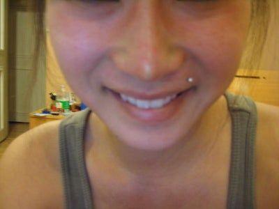 Nhìn rõ sụn nâng mũi qua da sau phẫu thuật