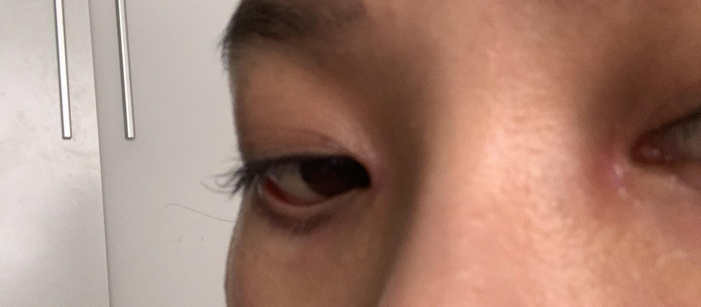 Chào bác sĩ tôi cắt mí dưới đã được 12 ngày, Nhưng hiện tại mí mắt dưới của tôi kéo xuống, Mắt tôi dễ bị khô khi ra gió và phía mắt cái có cảm giác bị kéo nặng nề, Xin hỏi bác sĩ có cách nào cải thiện được không? Tôi có cần làm phẫu thuật lại không và nếu