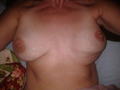 Treo ngực sa trễ 10 tuần bị hỏng, có thể khắc phục mà không cần phẫu thuật lại không?