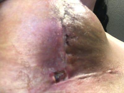 Vết khâu hở sau treo ngực sa trễ: bình thường hay bị nhiễm trùng?