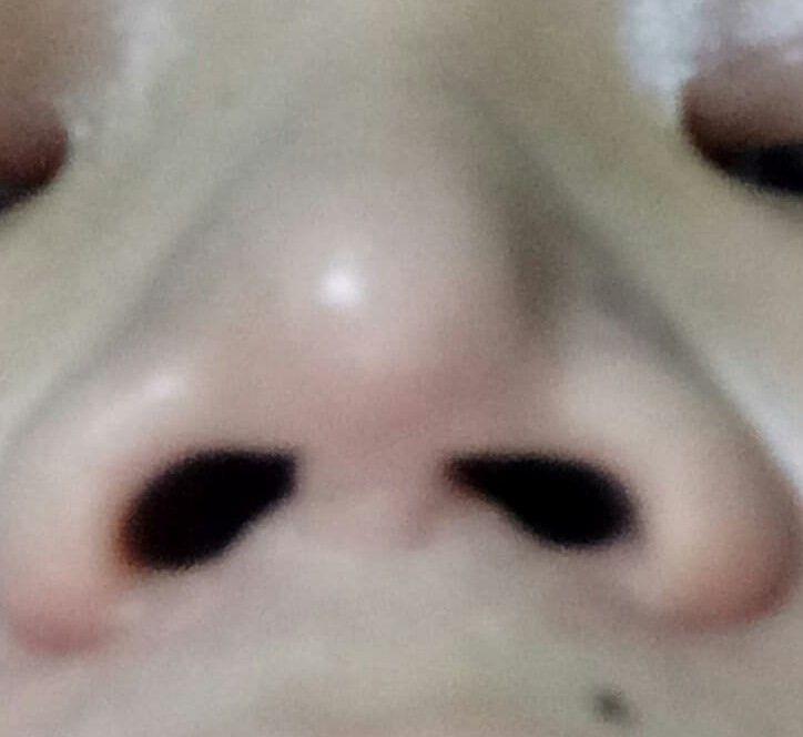Nâng mũi hơn 8 năm có gây ra viêm xoang/viêm mũi không?