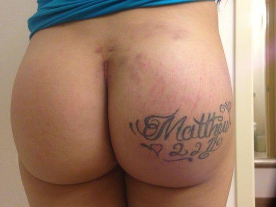Bầm tím và đau kéo dài nhiều tháng sau đặt túi độn mông