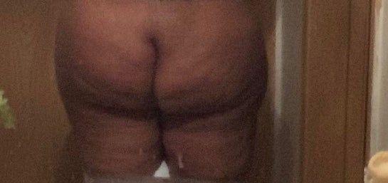 Đặt túi độn mông có giúp loại bỏ da sần vỏ cam và u cục lổn nhổn do nhiều lần cấy mỡ mông không?