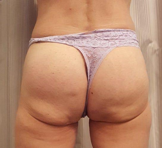 Đã đặt túi độn và cấy mỡ mông nhưng mông dưới vẫn bị chảy xệ, xuất hiện cuộn mỡ