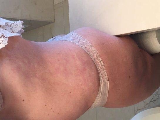 Bầm tím kéo dài không hết dù đã 18 tháng sau hút mỡ và tạo hình thành bụng mini