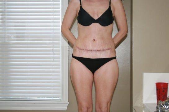 Gập bụng crunch sau tạo hình thành bụng kèm thắt cơ?