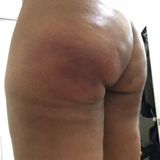 Áp xe sau 3 tuần nâng mông bằng mỡ tự thân