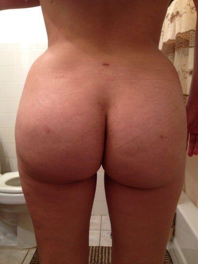12 tuần sau cấy mỡ: mông xuất hiện cục cứng nhỏ, liệu có phải là hoại tử mỡ không?