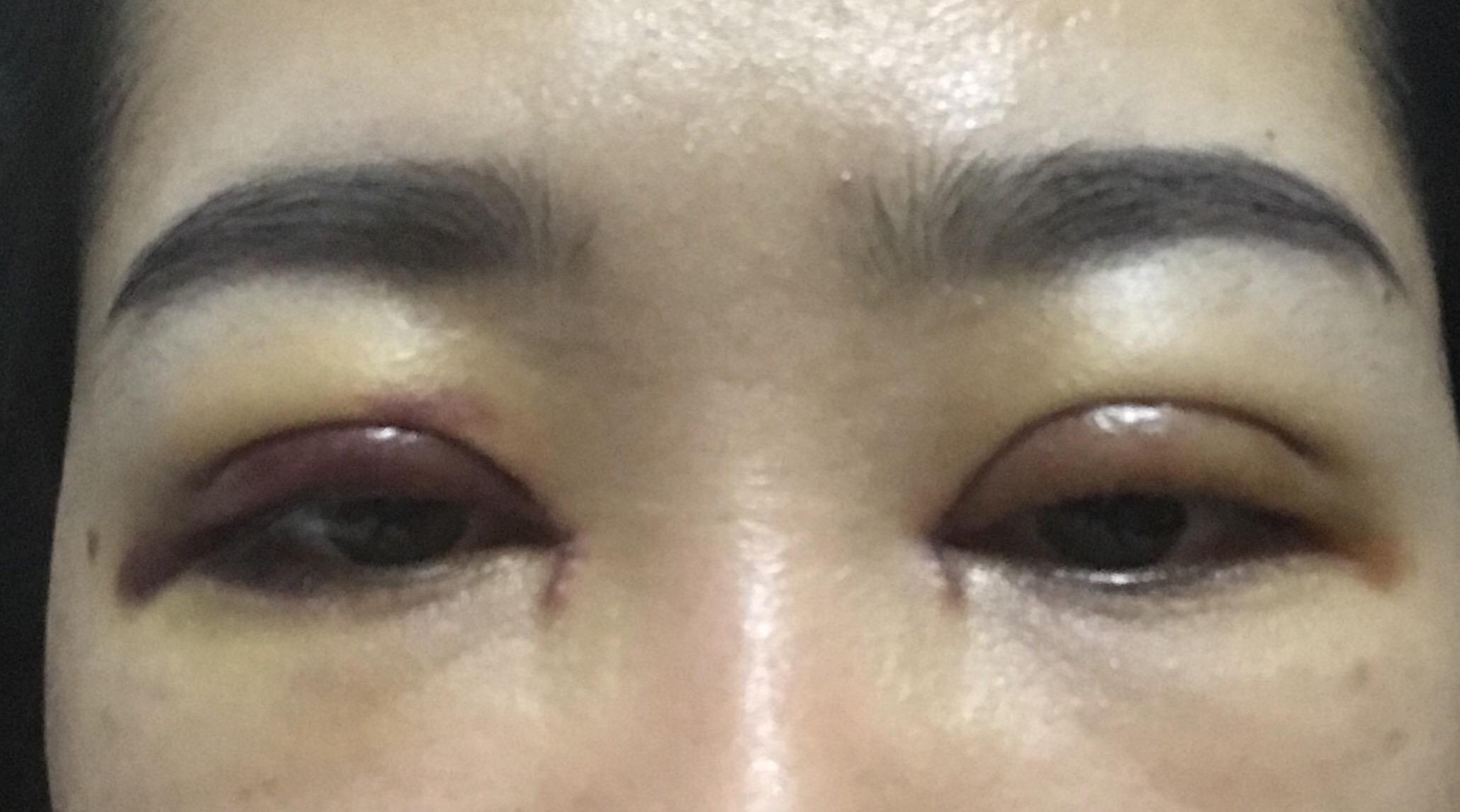 Khung xương mắt lệch