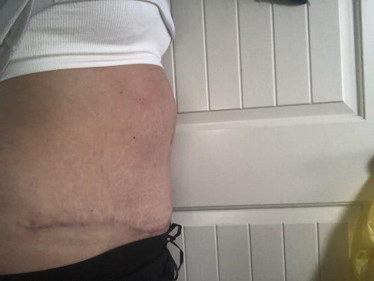 Nếu bị sưng to thêm sau 6 tháng từ lúc làm phẫu thuật tạo hình thành bụng toàn phần thì có bình thường không?