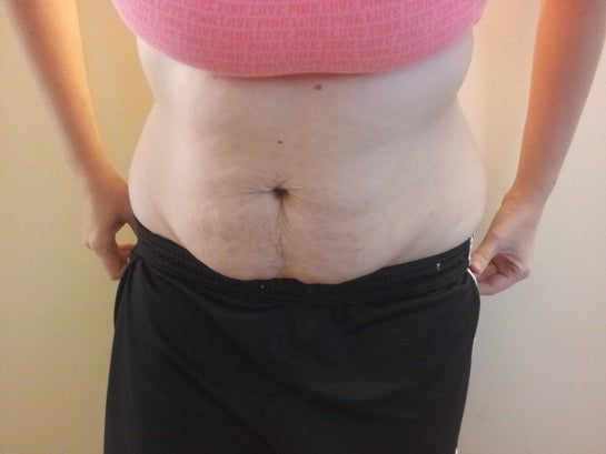 Cao 1m7, 26 tuổi, có 2 con, định phẫu thuật nâng ngực. Tôi có nên làm thêm tạo hình thành bụng toàn phần hay tạo hình thành bụng mini kèm hút mỡ hai bên không?