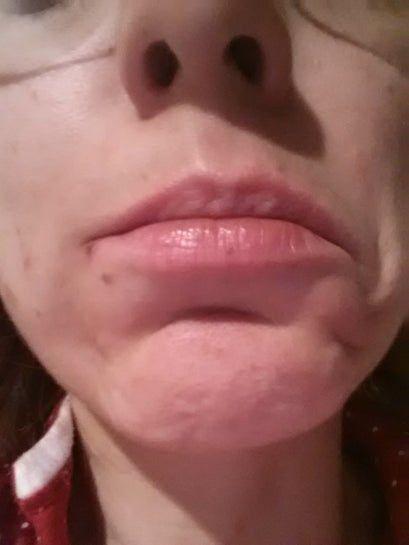 Các cơ quanh khóe miệng có hồi phục sau khi bị tê liệt do botox không?