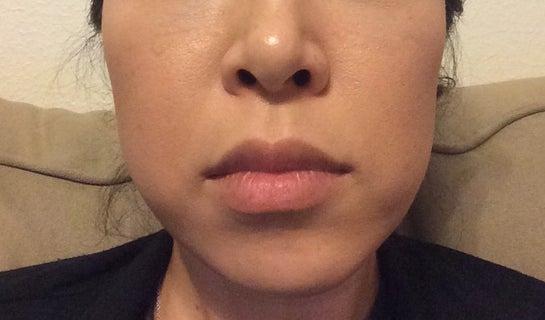 Tiêm botox góc hàm liệu có giúp cải thiện tình trạng bất cân đối trên khuôn mặt của tôi không?