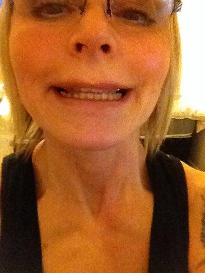 Nụ cười của tôi đã hoàn toàn thay đổi sau khi tiêm botox vào trán, nếp cau mày, nếp chân chim và dưới mắt???