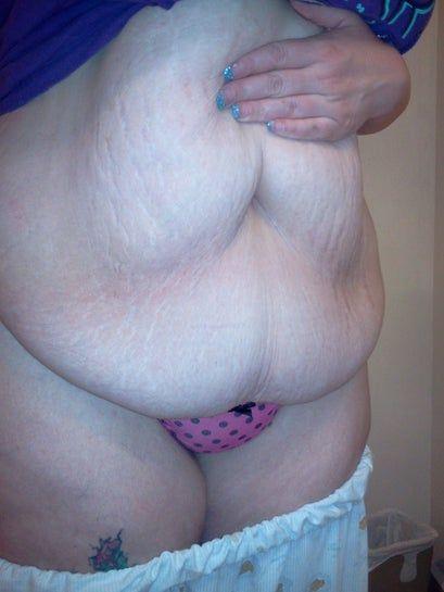 Đau, sưng nề, co rút cơ bụng sau 2 tuần từ khi làm tạo hình thành bụng. Có bình thường không?