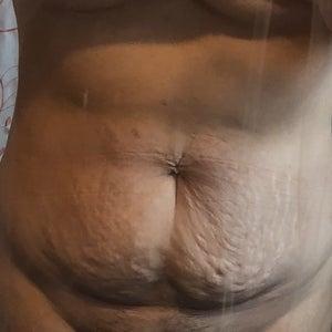 Tôi nặng 70kg, đang giảm cân, đã có hai con và 33 tuổi, tôi có thể hút mỡ thay vì làm tạo hình thành bụng không?